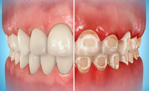 miami-orthodontist-decalcification-with-braces