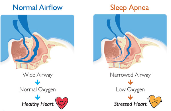 sleep-apnea-diagram