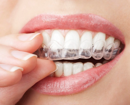 Invisalign Insurance