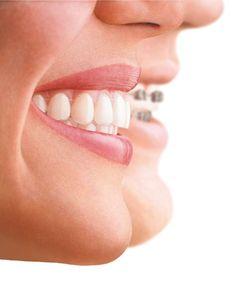 b76a2324784018265e0c29366cfcb3eb--invisalign-cosmetic-dentistry
