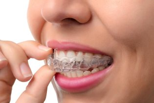 invisalign-in-culver-city