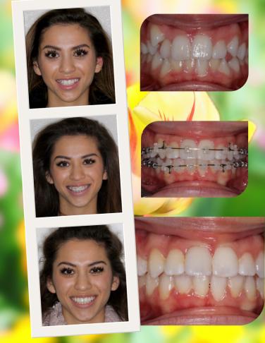 To Extract Or Not To Extract Mashouf Orthodontics